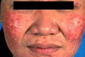 steroid induced acne accutane
