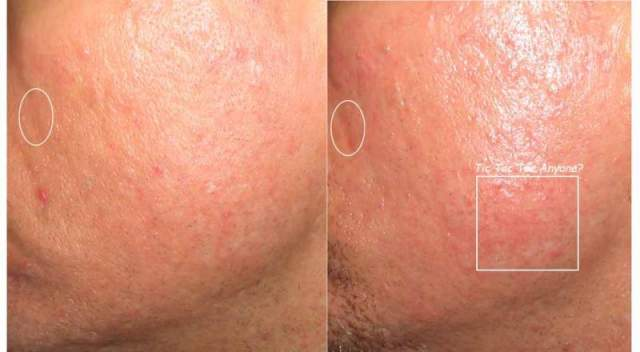 PostGlycolicBefore&After9-28-04.jpg