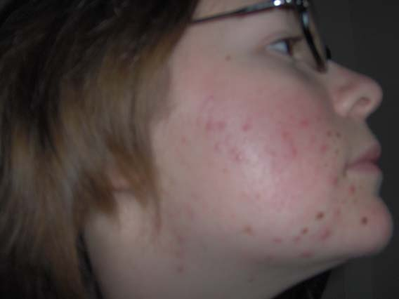 28.05.05, 5 weeks into treatment, right side