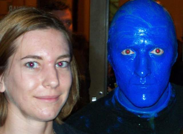 Another before Accutane treatment picture (with a Blue Man)