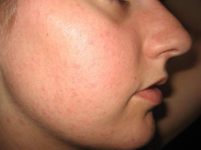Itchy red bumps on my face - Dermatology - MedHelp
