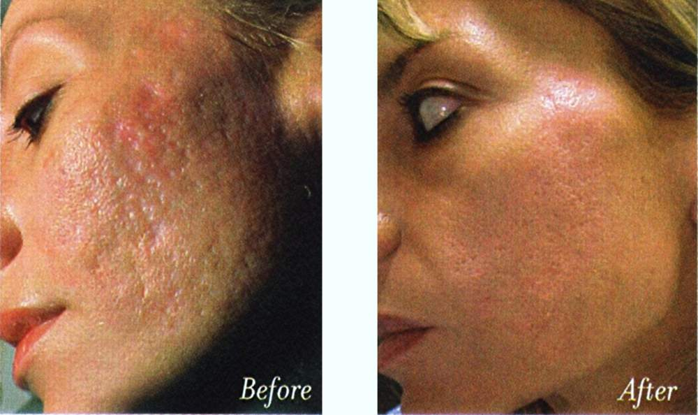 Black People Acne Scars Before And After Acne Scars Before And After
