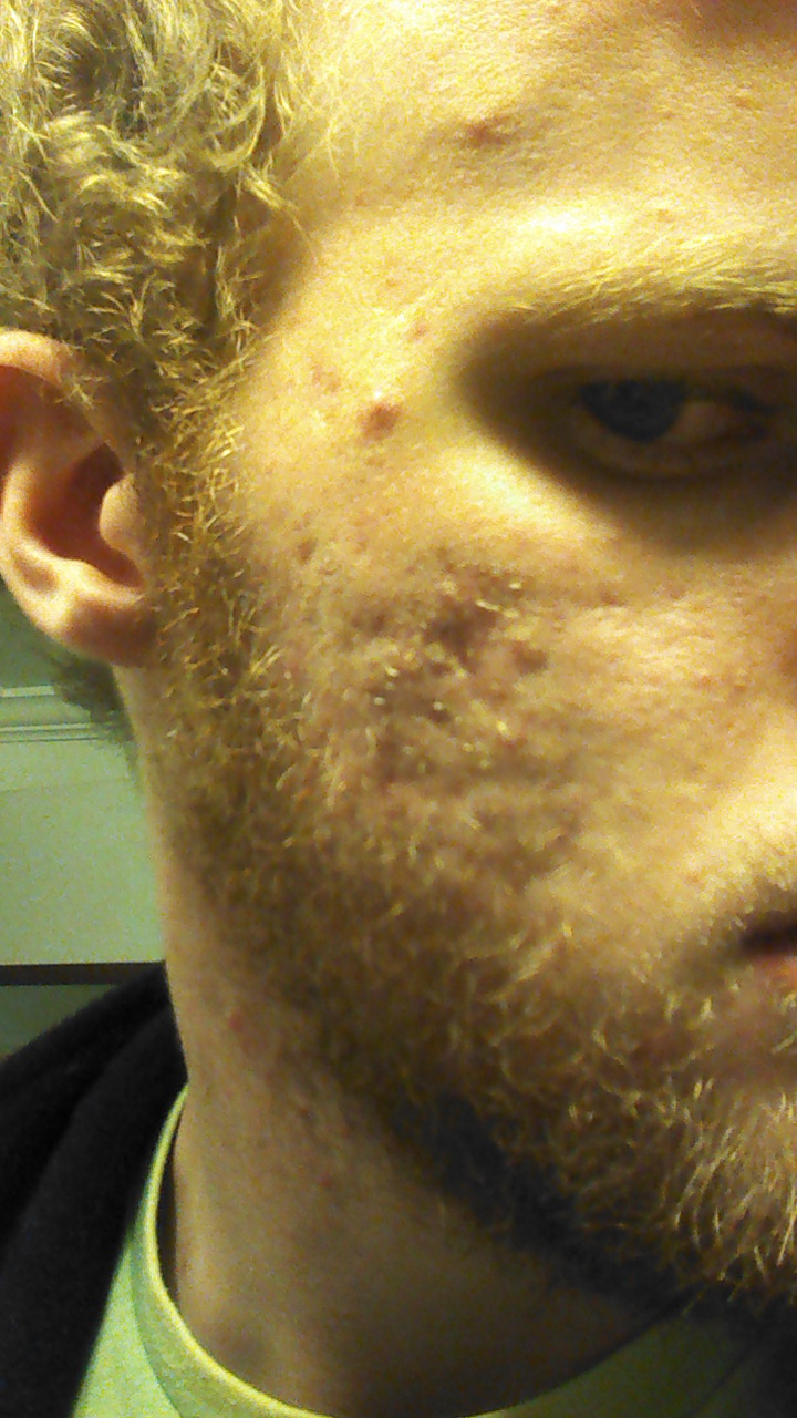Scars - Acne.org Member Blogs