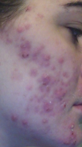 Right side of my face (Day 5ish on The Regimen.