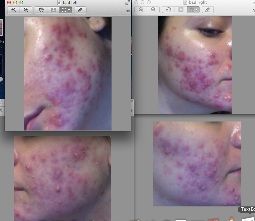 The top are my left and right cheek a day before starting the regimen, and the bottom are my left and right cheek 6 days after starting the regimen.