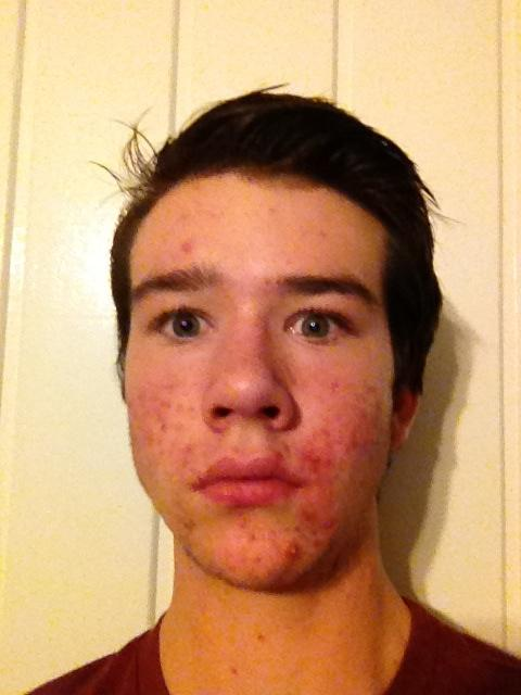Front view on day 1
