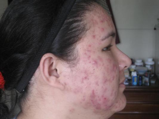 Acne was at its worst - right side