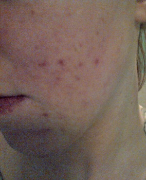 Month 3 of accutane