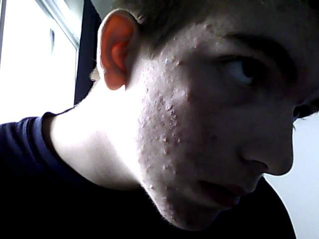 Before Accutane (2)