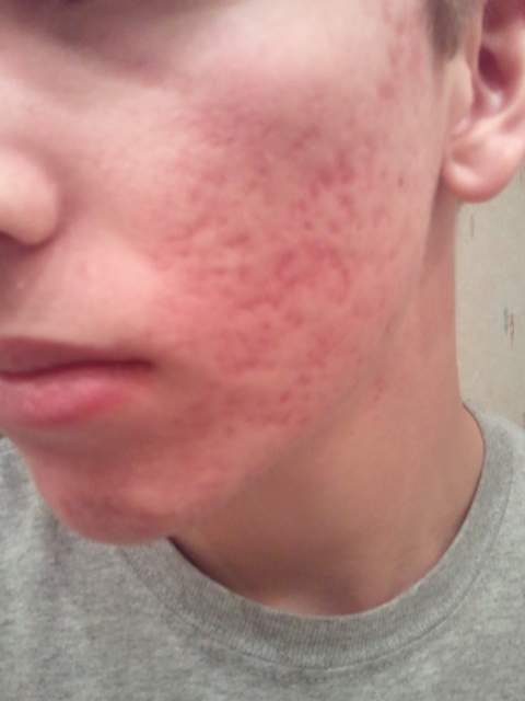 Post Accutane (2 weeks after ending the course) Pic 3