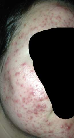 Folliculitis or acne?
