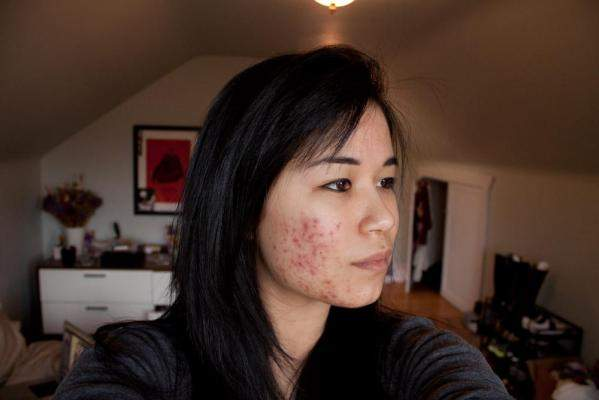 Right cheek (week 2)