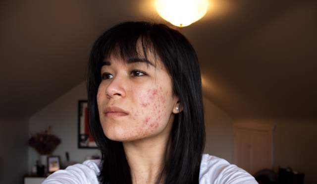 Left cheek (week 4)
