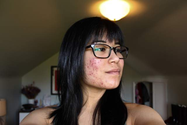 Right cheek (month 2)