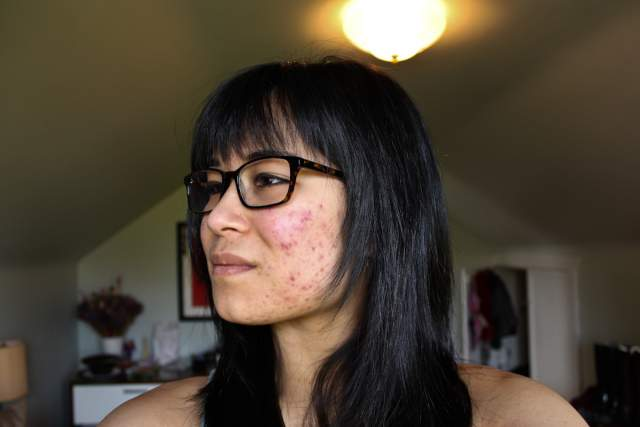Left cheek (month 2)