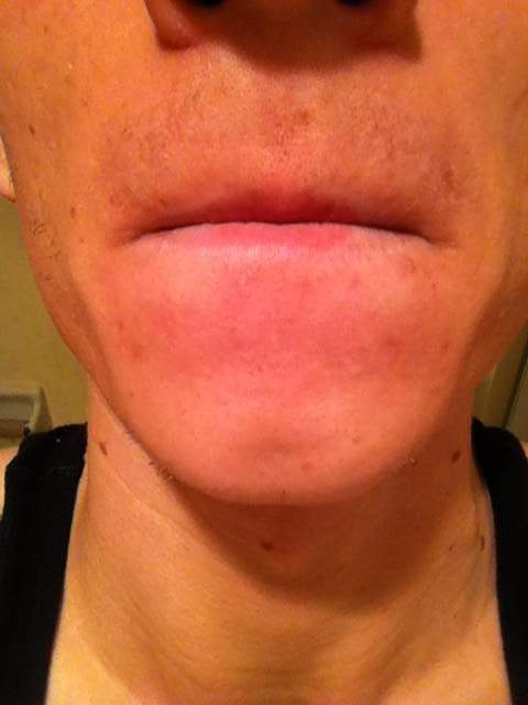 Week 2! Chin/upper lip