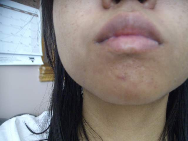 April 17,2013  scar on chin