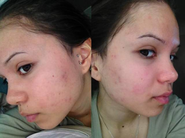 Day 1 of Regimen (Left cheek - Right cheek)