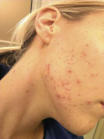 acne sept 23rd 13 days into vitamin A treatment