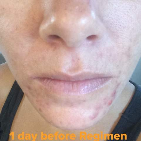 1 Day before starting The Regimen