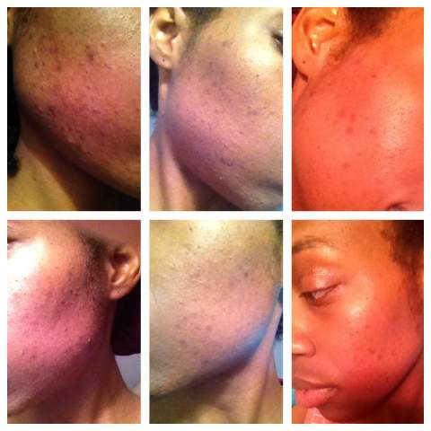 Results from using The Regimen in 2 months!!