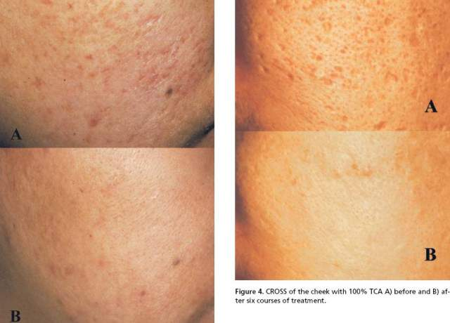 Acne Scarring / Removal / Fraxel Laser Surgery | Page 2