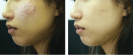 acne_scars_before_after.gif