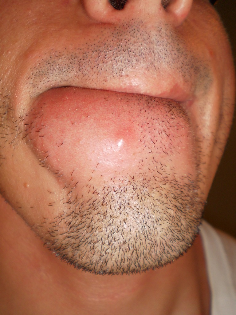 acne adult chin