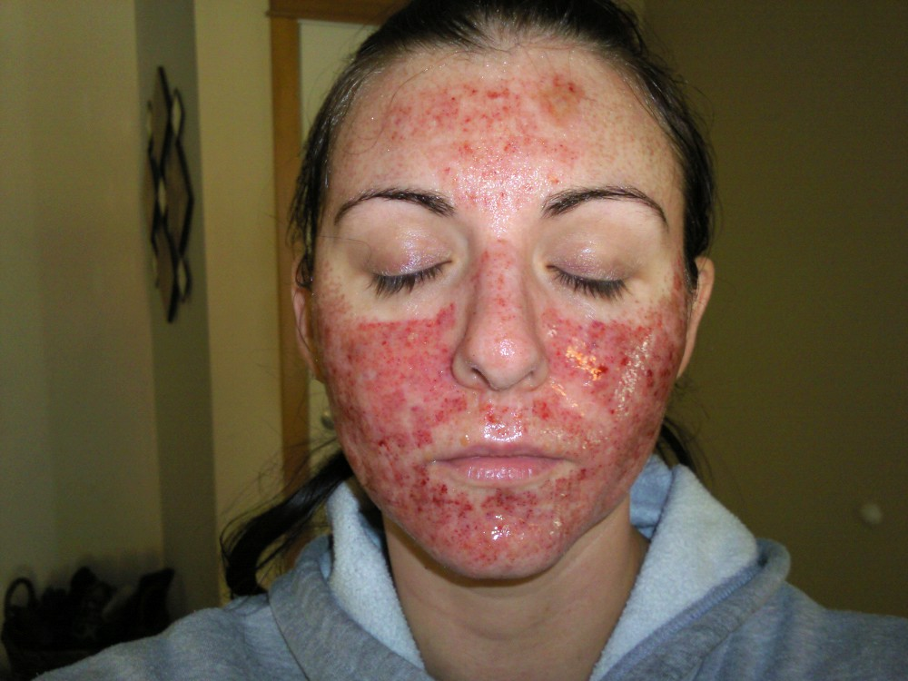 Just Had Total Fx Scar Red Mark Treatments Forums