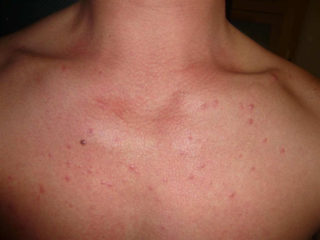 Folliculitis Treatments and drugs - Mayo Clinic