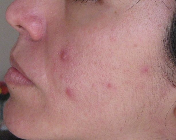 acne adult cause cure cyst