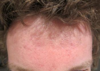 acne scars on forehead how to get rid of
