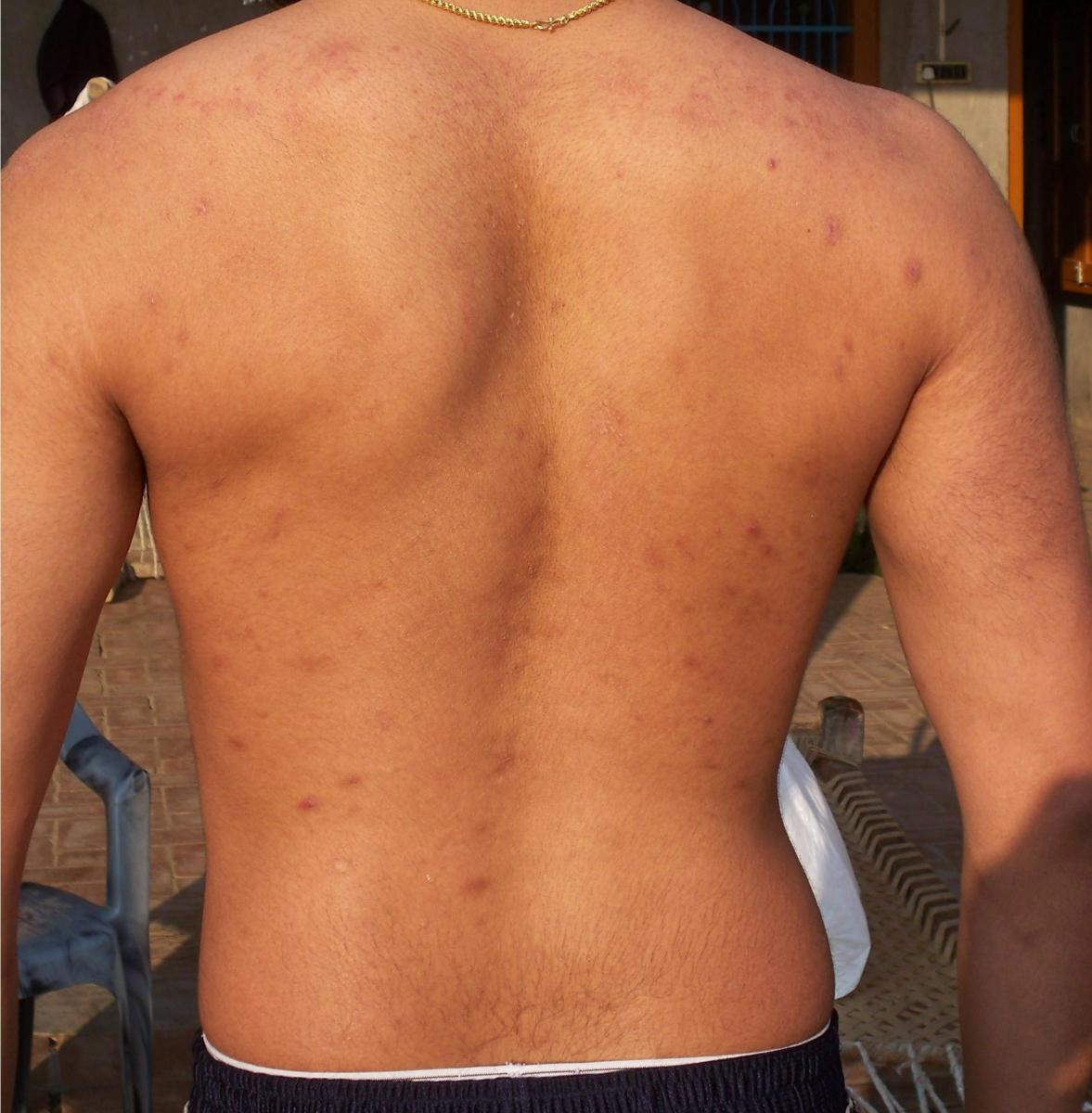 Dark Spots All Over Back & Arms :( What Worked For You