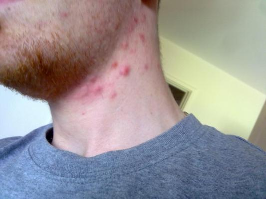 Neck Acne (Bit On Jawline Too) - Back/Body/Neck acne - Forums