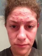 First complete week of Accutane